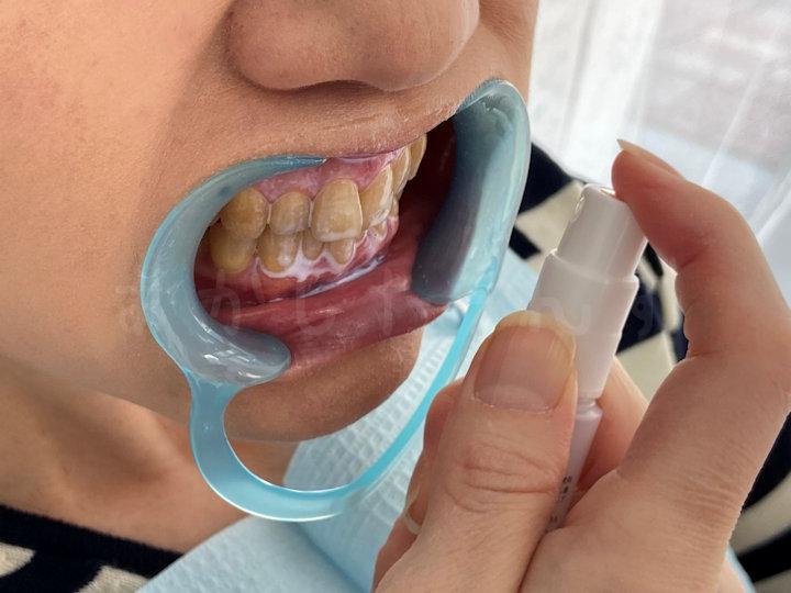 ホワイトニング溶液を歯にスプレー