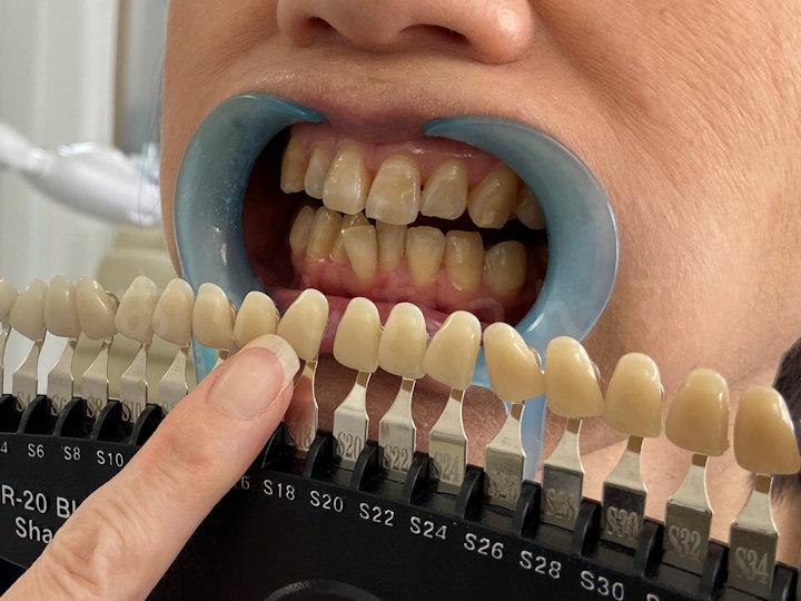 施術後の歯のトーンチェック